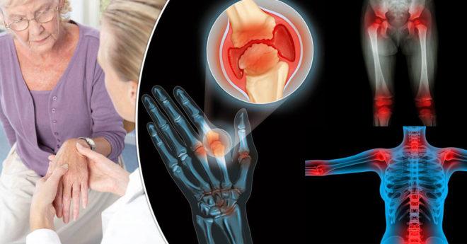 Артрит – серьезное воспалительное заболевание сустава или нескольких суставов