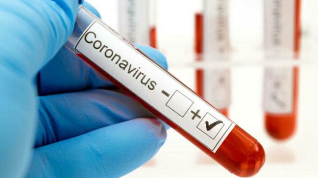 В Звёздном коронавирусом болеет 19 человек